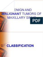 Benign and Malignant Tumors of Maxillary Sinus - Ashish