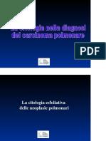 Citopatologia 11Citologia Polmonare Carcinomi