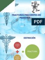 Fracturas Frecuentes en Pediatria