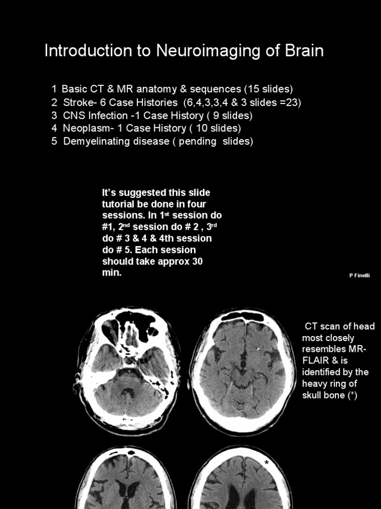 Introduction to Neuroimaging of Brain | Magnetic Resonance Imaging ...