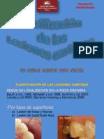 clasificación de las lesiones cariosas Dr Paco