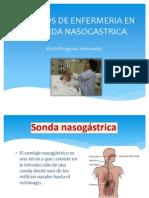 Cuidados de Enfermeria en La Sonda Nasogastrica