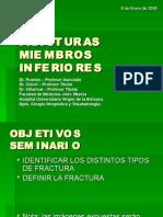 SEMINARIO 6 Fracturas de Miembros Inferiores (Parte 1)