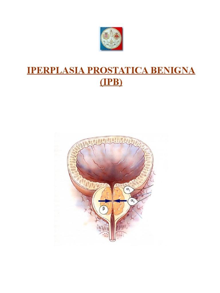 ostruzione collo vescica prostatite flussomwtria