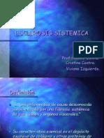 Esclerosis Sistemica