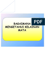 Program Indera Mata Di Puskesmas