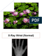 ْْX-Ray on Extremities
