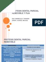 Protesis Dental Parcial Removible