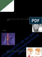 Clasificación de las enfermedades Cerebrovasculares