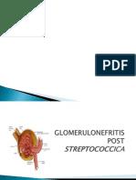Glomerulonefritis Post Streptococcica