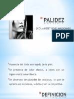 PALIDEZ