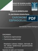 Carcinoma Espinocelular 1