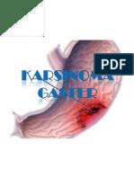 PPT Karsinoma Gaster
