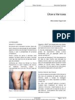 Artigo úlcera varicosa