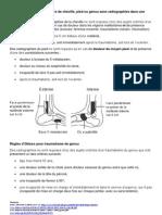 Comment Exclure Une Fracture de Cheville Pied Ou Genou Sans Radiographies
