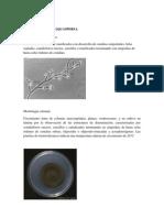 Rhinocladiella aquaspersa