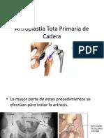 Artroplastia Tota Primaria de Cadera