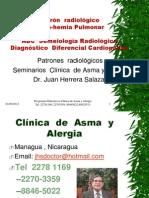 Patrón Radiologico Oligo-hemia pulmonar.