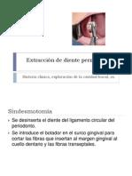Exodoncias en El Maxilar Superior