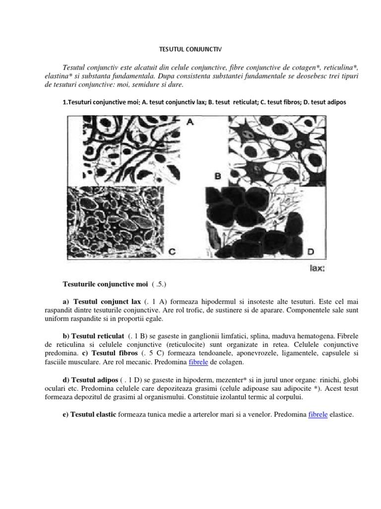 boli de țesut conjunctiv difuz sigidină)