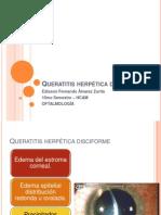 Queratitis herpética disciforme