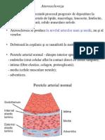 5 Ateroscleroza