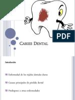 Presentacion CARIES DENTAL