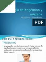 Neuralgia del trigémino y migraña