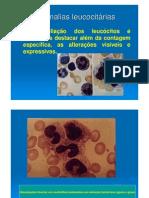 Anomalias Leucocitárias