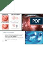 Profilaxia Cancerului de Col Uterin