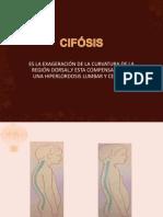 8 Ejercicios Para Cifosis