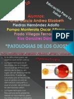 Patologias de Los Ojos