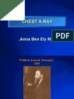 Chest X-Ray Anna