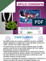 Caso Clinico Sifilis Congenita