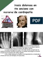 Artrosis Dolorosa en Anciano Con Cardiopatia