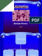 leucemias-1214015873776626-9