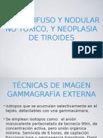 Bocio difuso, nodular no tóxico y neoplasia de tiroides