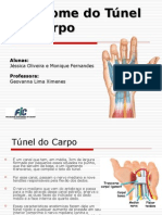 Sindrome Do Tunel Do Carpo