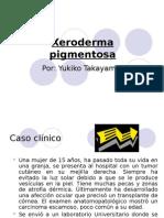 Xeroderma Pigmentosa