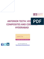Anterior Teeth Veneers Hyderabad