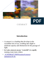 Cataract Ppt