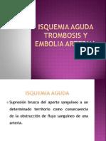 Isquemia Aguda Trombosis y Embolia Arterial