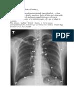 Radiografia de Torax Normal