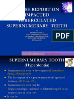 Case Report on Impacted Supernumerary Teeth