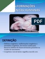 MALFORMAÇÕES CONGÊNITAS HUMANAS