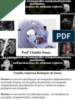 As Vantagens Da TC Multislice  nos protocolos de abdome e tórax Profº Claudio Souza