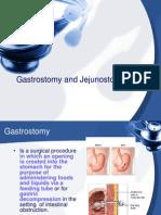 Gastrostomy and Jejunostomy