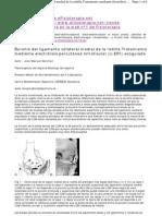296 Bursitis Ligamento Colateral Rodilla