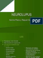 Neurolupus