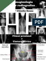 aula 4- Imaginologia por radiografias- Femur e cintura pelvica. Profº Claudio Souza